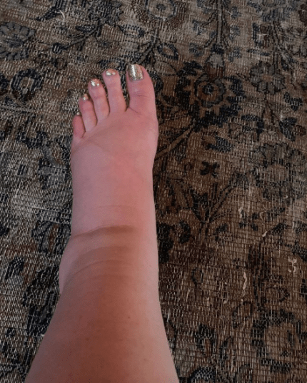 jessica simpson's very swollen feet