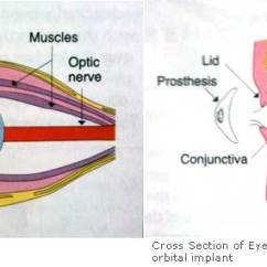 Diagram Of Artificial Eye Vz Ls1 Wiring Blind Removal Enucleation Evisceration Oculoplastic Surgeon Uk The Is Padded Shut For First 48 Hrs And On When You Open Your Lids Will See Moist Pink Lining Socket Like Inside