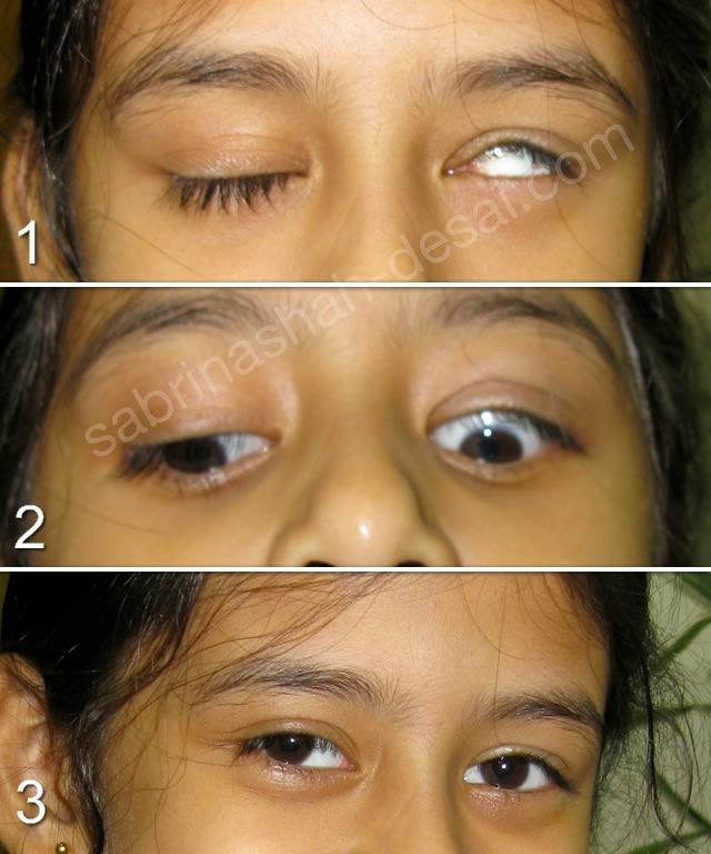 Eye Makeup For Ptosis Saubhaya