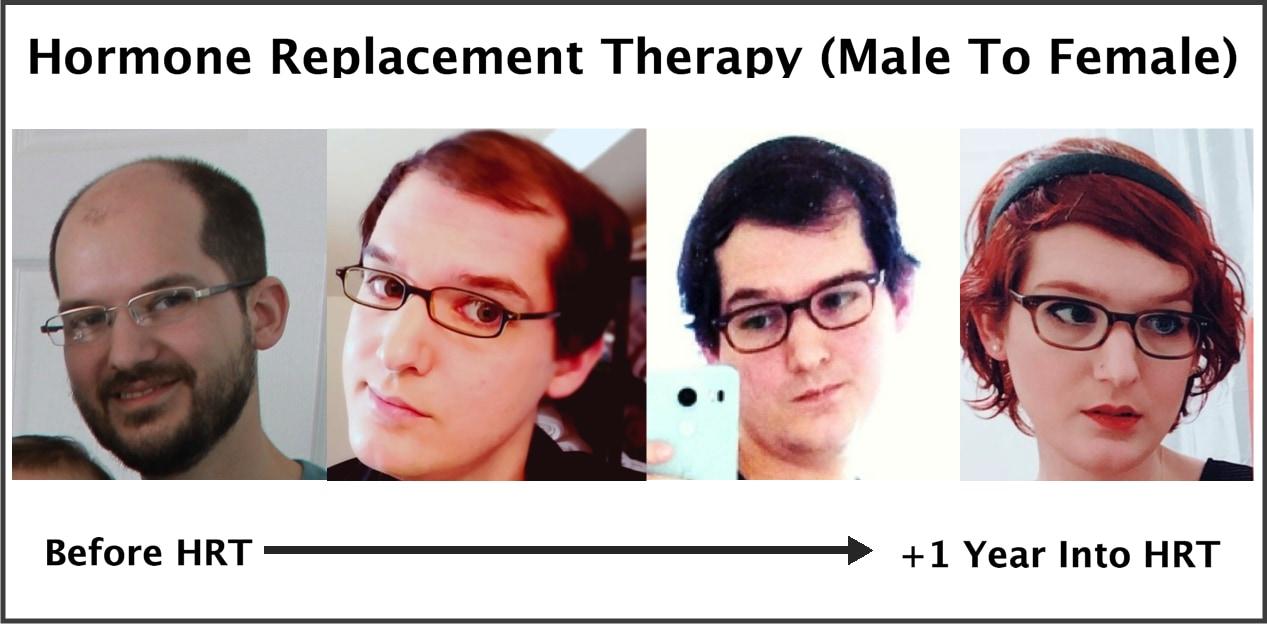 exactly how trans hormone