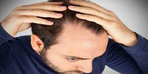 How to choose the right solution for hair loss problem