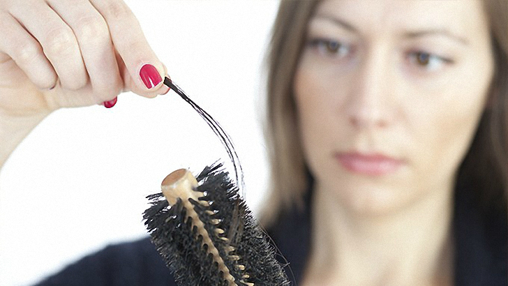 Nutrition and Hair Loss