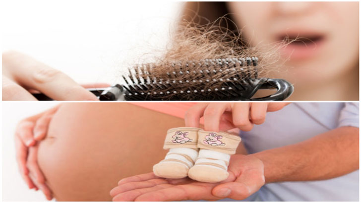 Causes and treatment of hair loss after pregnancy