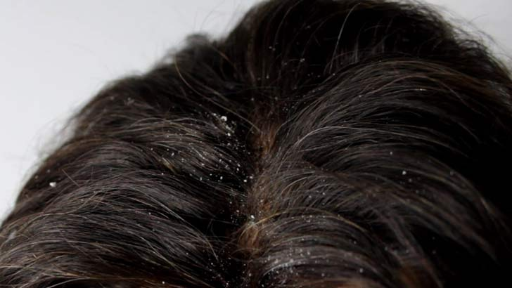 Dandruff Treatment Remedies