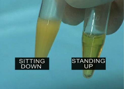 https://i0.wp.com/perfecthealthdiet.com/wp/wp-content/uploads/2012/10/Sitting-vs-Standing-Lipase.jpg