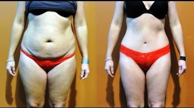Резултат со слика за Get Rid Of That Dull Drooping Belly With This Very Effective Natural Drink!