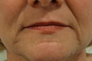 dermal_fillers_1_after_perfectimage