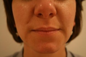 dermal_fillers_2_after_perfectimage