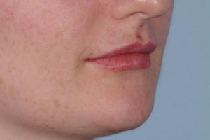 dermal_fillers_4_after_perfectimage