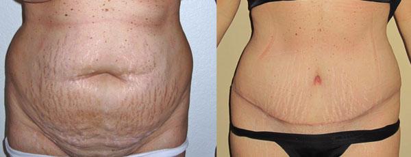 Abdominoplastia antes e depois - foto 1
