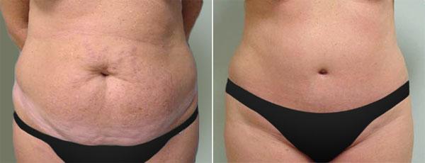 Abdominoplastia antes e depois - foto 3