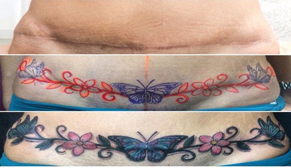 Abdominoplastia antes e depois - foto 4