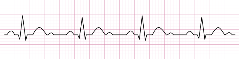 courbe cardiaque - cohérence cardiaque