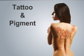 tattoo and pigment applications - aesthetic medical devices