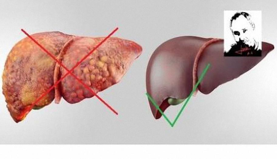 Cura tu hígado en tres pasos