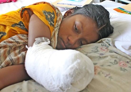 Razia, de 25 años, en el hospital el 4 de mayo de 2013. Logró sobrevivir al derrumbe, pero quedó mutilada de forma permanente. Crédito: Naimul Haq /IPS