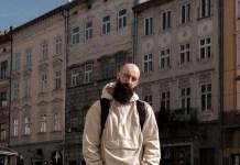 alopecia calvicie trasplantes capilares