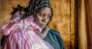 Una madre lleva a la hija a vacunar al ambulatorio de Yida, en Sudán del Sur, atendido por MSF. (c) Yann Libessart