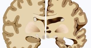 La enfermedad de Alzheimer podría revertirse