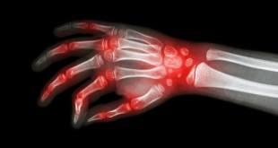 Diseñado un nuevo hidrogel para tratar la artritis reumatoide