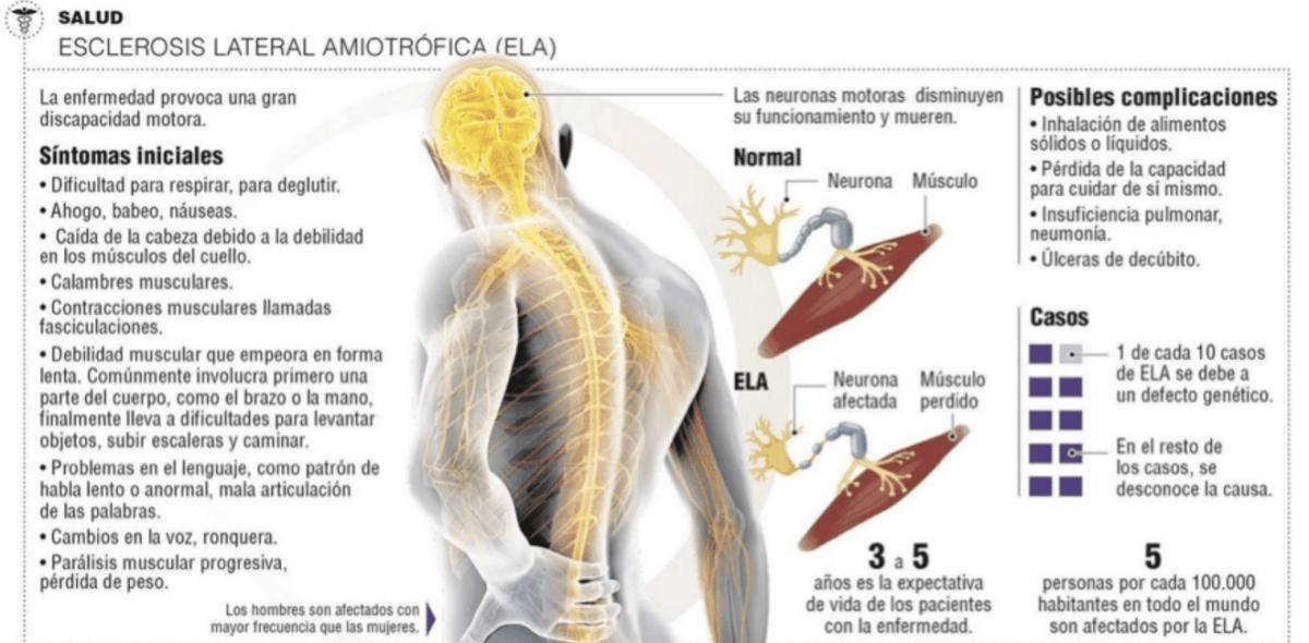 Científicos descubren una posible cura para el ELA y la DFT
