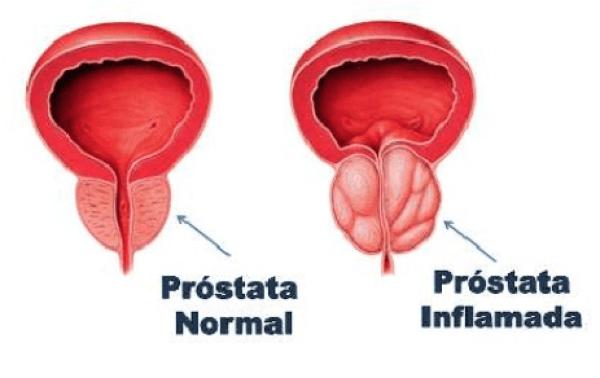 inflamacion de prostata por bicicleta