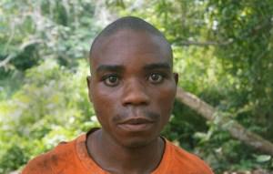 Este hombre baka fue golpeado por ecoguardas. Survival ha hablado con docenas de víctimas similares por toda la cuenca del Congo. © Survival International