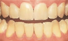 Coffee stains on teeth