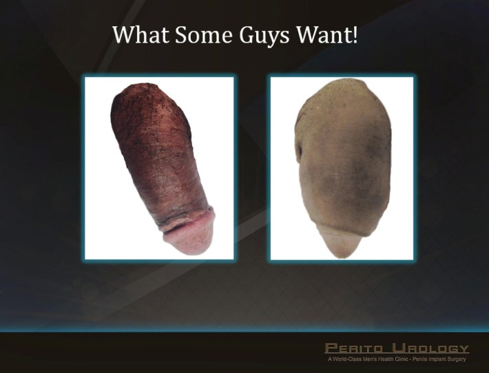 penile girth augmentation surgery ~ erectile dysfunction treatment