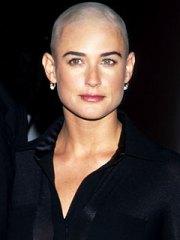 chemo hair loss perks of