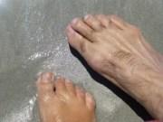 toe hair - electrolysis permanently