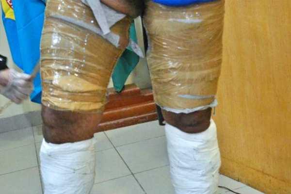 Polícia Federal prende no aeroporto de Jaboatão homem com 3 kg de cocaína presos no corpo