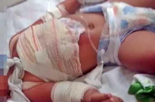 ALTINHO: Panela de arroz quente vira por cima de criança de 1 ano seis meses Pernambuco Notícias