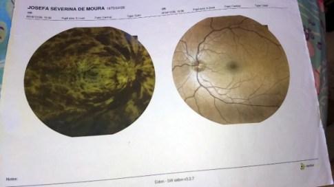 Tia Jô não vai disputar a eleição do Conselho Tutelar porque perdeu 100% da visão de um olho