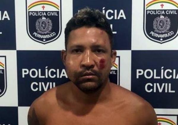 Traficante quebra dedo de policial civil durante prisão em Porto de Galinhas