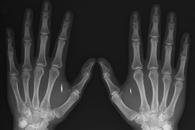 An X-ray showing the chips implanted in Amal Graafstra's hands