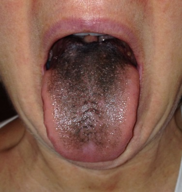 Image result for black tongue from pepto