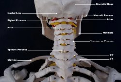 personal injury doctor occiptal_atlast_axis_craniovertebral anatomy