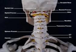 médico de lesiones personales occiptal_atlast_axis_craniovertebral anatomía