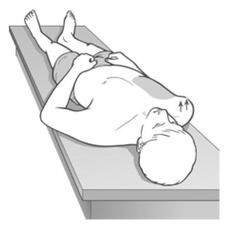 Figure 4 24 Observation Assessment for Pectoral Shortness Image 1