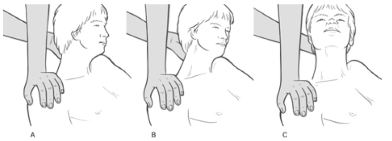 Figure 4 32 MET Treatment of Right Side Upper Trapezius Muscle Image 3