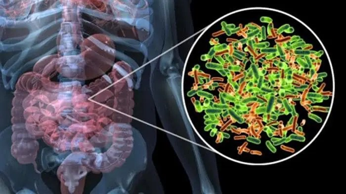 Image of digestive system demonstrating SIBO with irritable bowel syndrome.