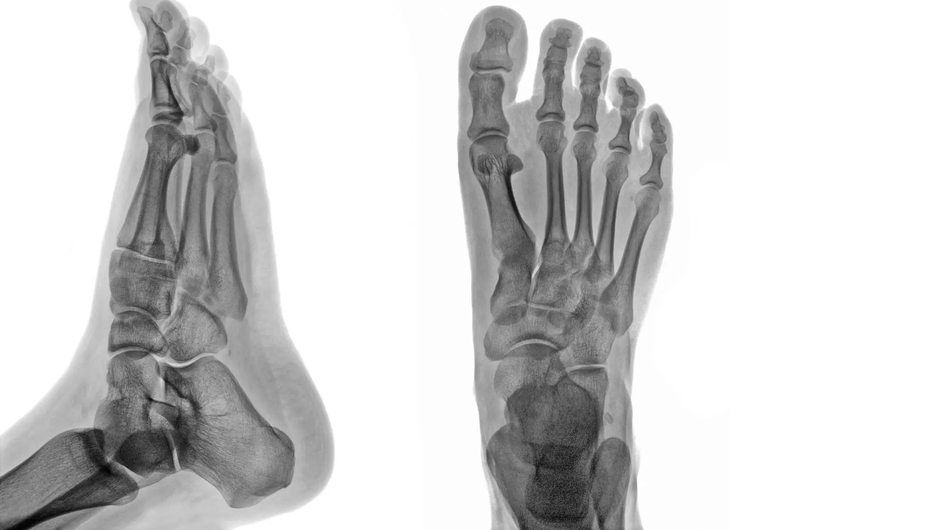 Ankle & Foot Diagnostic Imaging Arthritis & Trauma I | El Paso, TX.