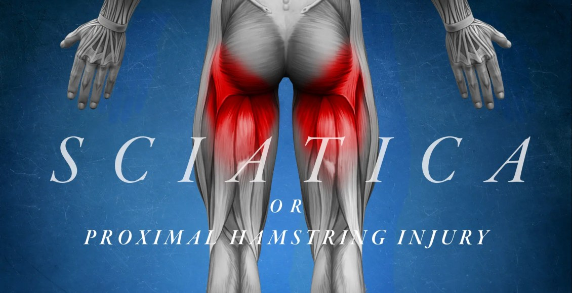 Sciatica or Proximal Hamstring Injury | El Paso, TX Chiropractor