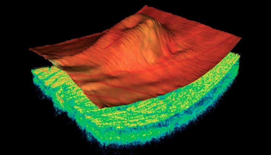 oct 3d eye scans