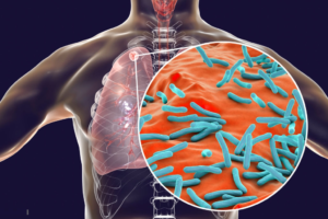 Tuberculosis Cure; Here is Everything You Need to Know