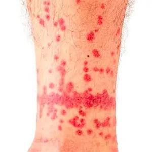 Flea bites on human