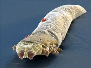 How to Get Rid of Mites on Humans: Types of Mites on Humans