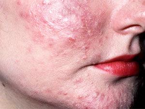 Mites' symptoms on skin