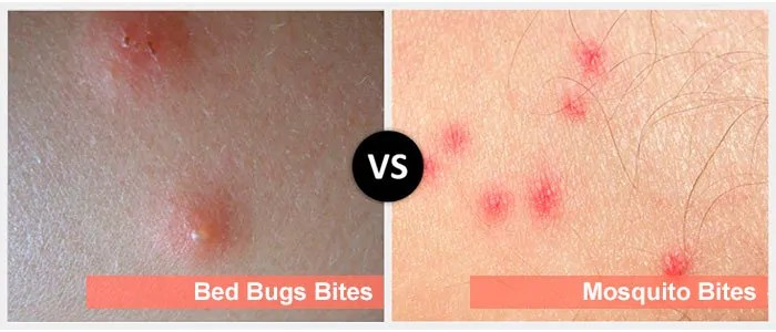 Mosquito and Bedbugs Bites